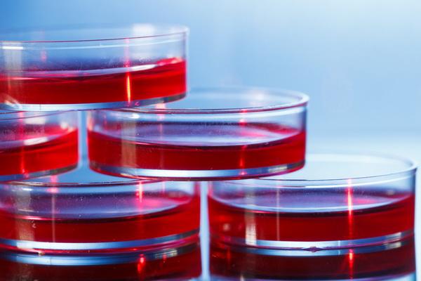 Las células de corazón derivadas de células madre son necesarias para avanzar en la comprensión de la dolencia cardiaca en la Ataxia de Friedreich
