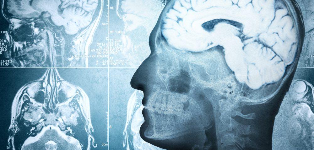 ¿Por qué sólo ciertas células del cerebro se dañan en la Ataxia de Friedreich?