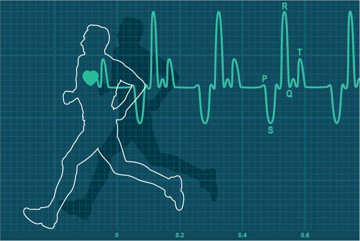 La tolerancia al ejercicio y la capacidad física de los pacientes con ataxia de Friedreich tardía