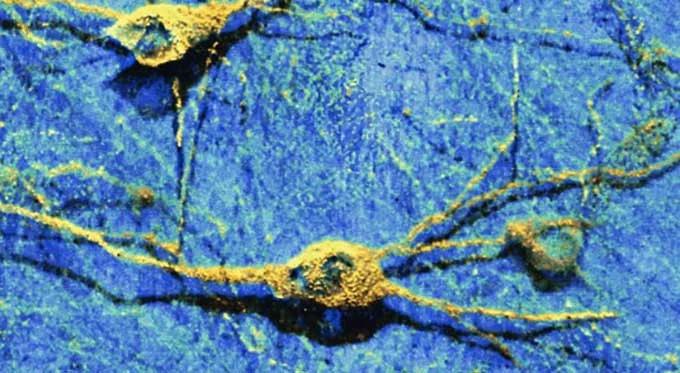 La Terapia Celular Instiga la Reparación Neuronal en los Ratones con Ataxia de Friedreich