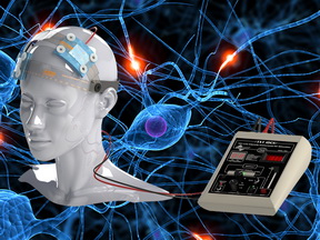 La estimulación eléctrica ayuda a los síntomas de ataxia